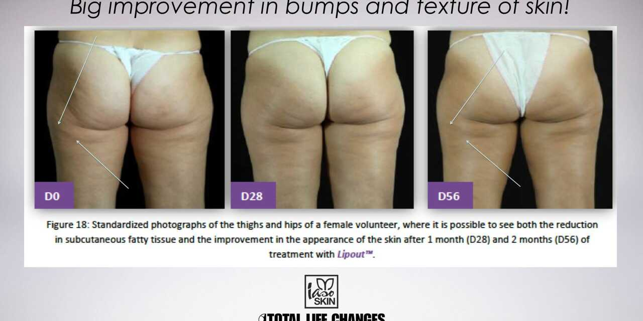 Struggling With Cellulite? Try These Ideas and Iaso Slim R!